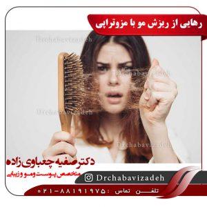 رهایی از ریزش مو با مزوتراپی